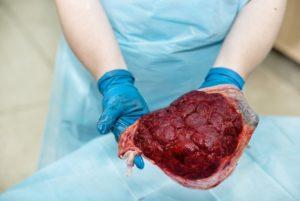 Placenta Moederlijke Kant