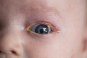 ontstoken ogen baby