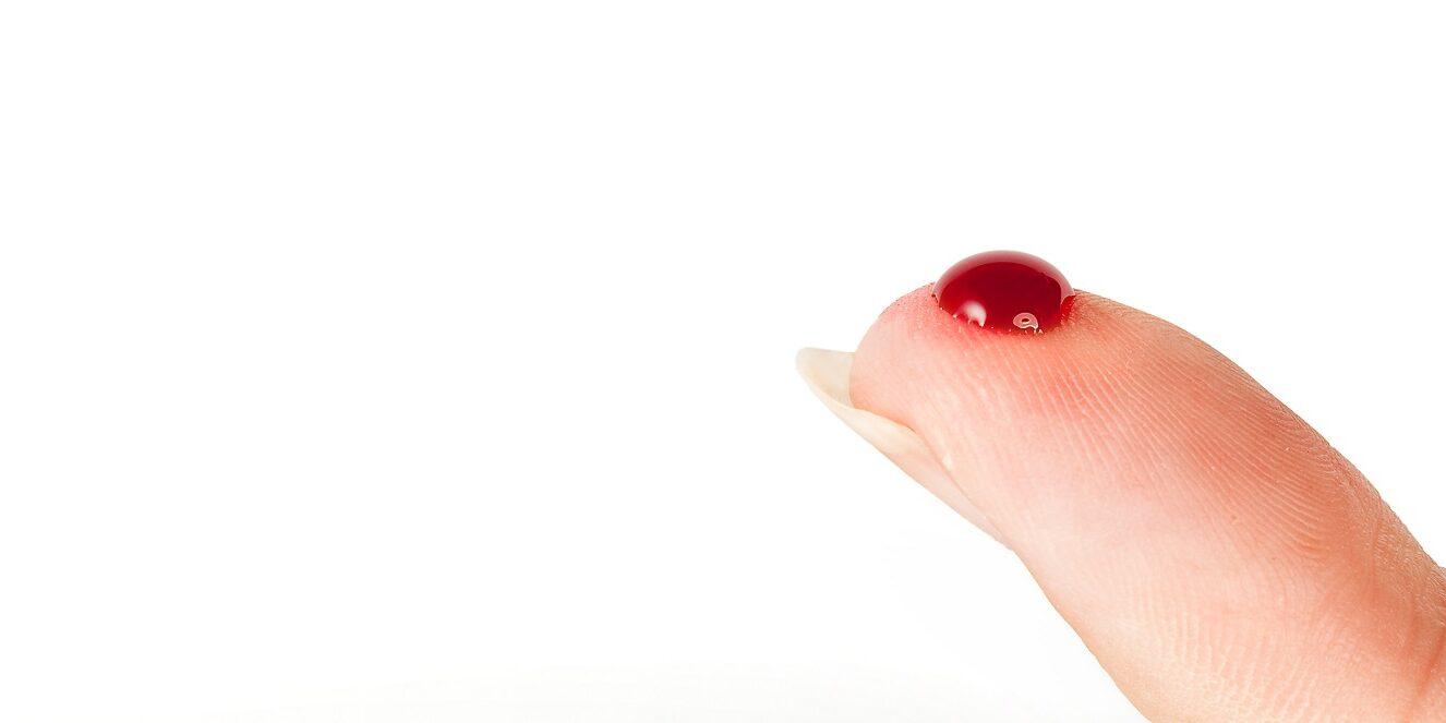 bloedarmoede in zwangerschap