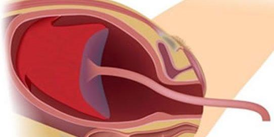 Geboorte Placenta