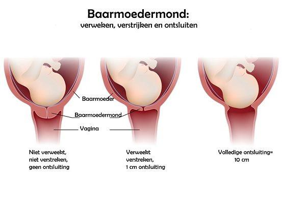 Hoe Gaat Dat Ontsluiten, Verweken En Verstrijken Van Baarmoedermond