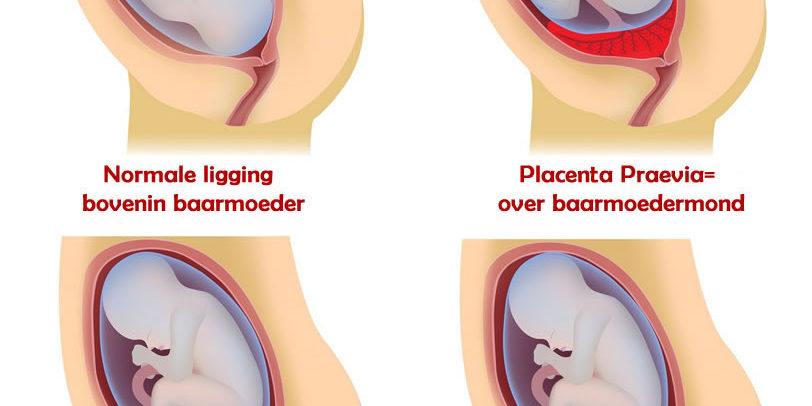 Placenta Ligging