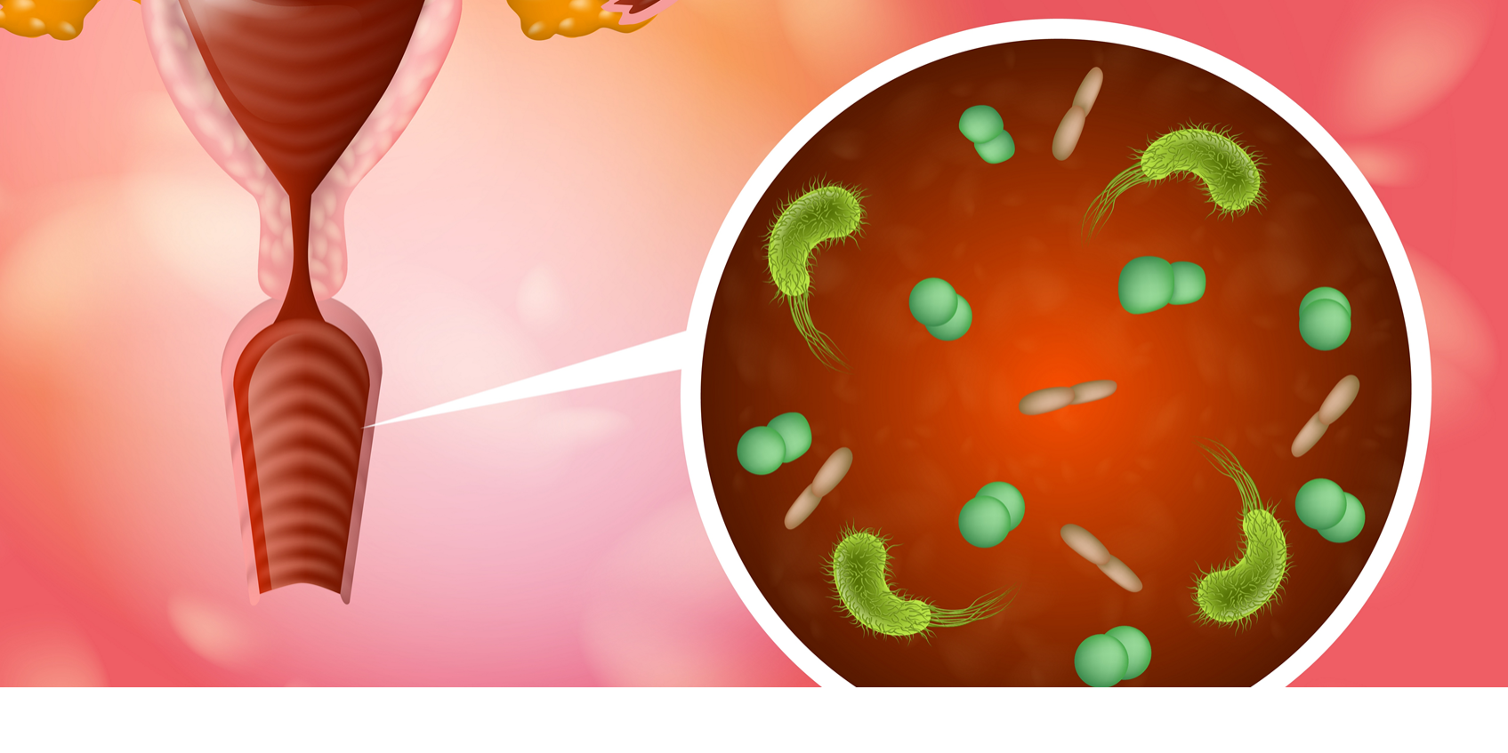 Vaginale Infecties In De Zwangerschap, Stinkende Afscheiding.fw
